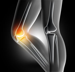 3D render of a female medical legs with bones in knee highlighted